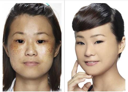 before-and-after-shakura